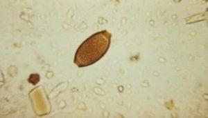 Scientists link new virus to kala-azar