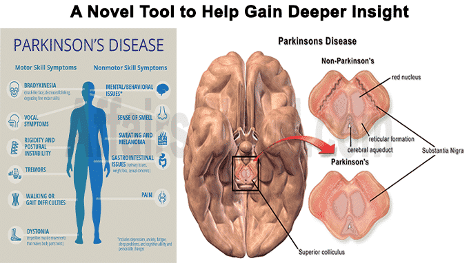 A novel tool to help gain deeper insight into Parkinson's disease